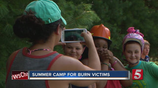 Camp Hope Restores Hope In Young Burn Victims