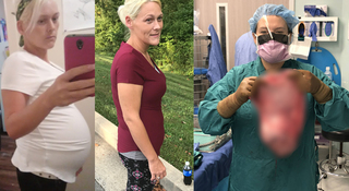 Woman has 20-pound cyst removed from stomach
