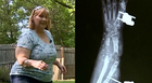 Woman Recovers After Vicious Dog Attack