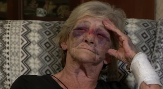 Police, Family Differ On Elderly Woman Beating
